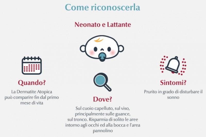 Dermatite atopica nei bambini, cause e cura infografica come riconoscere malattia neonato lattante