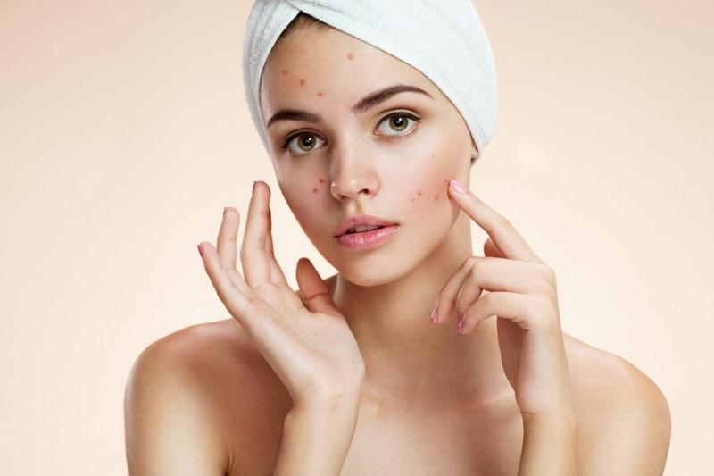 Piccole imperfezioni del viso: ecco come combatterle! piccoli brufoli cause e possibili soluzioni bellezza viso donna brufolo mani turbante spugna bianca
