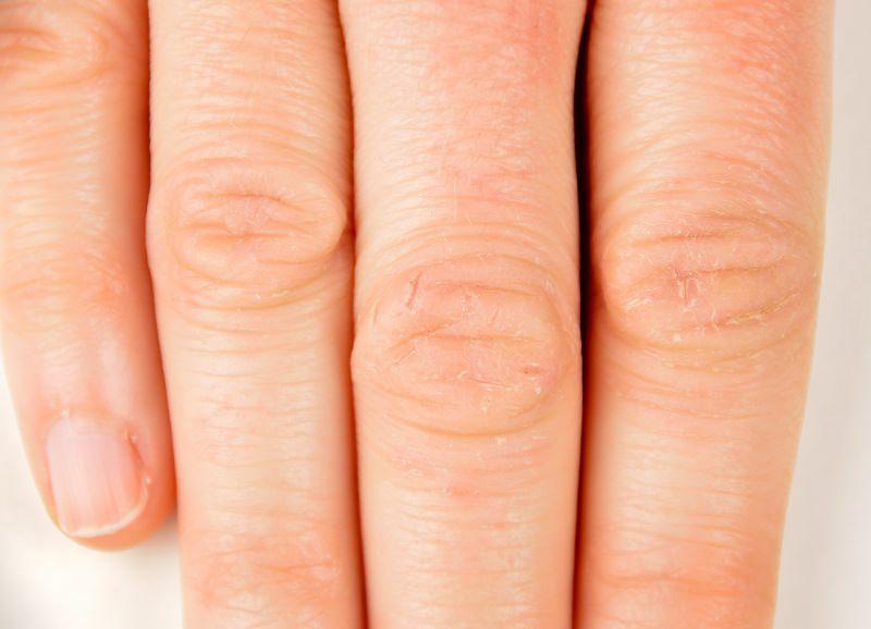 dita della mano con pelle rovinata dal freddo e detersivi