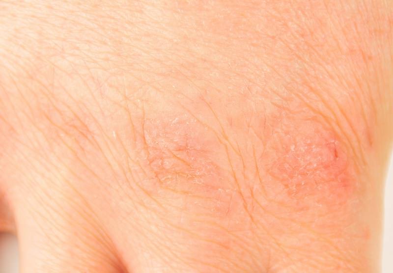 pelle della mano arrossata screpolata rovinata freddo e detersivi
