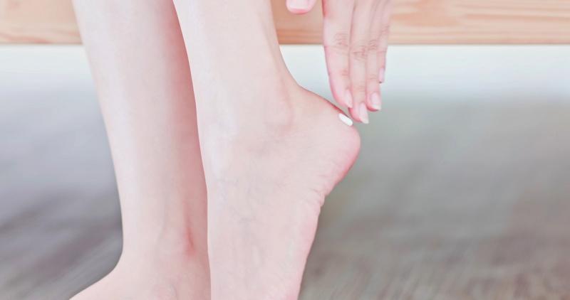 donna massaggia crema sulla pelle tallone piede