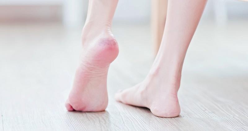 piedi donna tallone arrossato pelle screpolata talloni