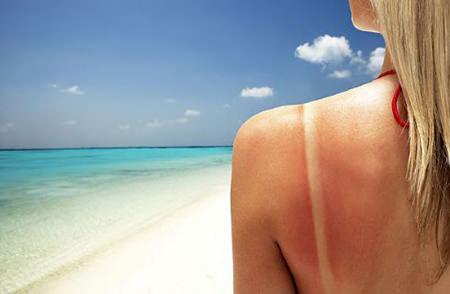 come curare eritema solare estate spiaggia mare donna pelle arrossata sole bruciata capelli lisci biondi ustione segno costume sabbia